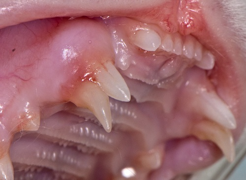 Retained deciduous upper canine teeth