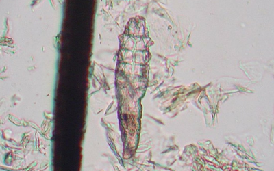 demodex_with_follcile