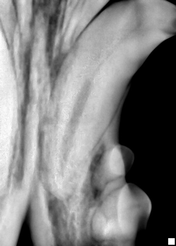 Retained upper canine causing abnormal stretching of the surrounding gum line