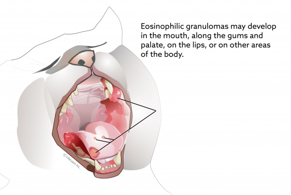 eosinophilic granuloma complex in cats vca animal hospital Cat Lips Mouth Diagram
