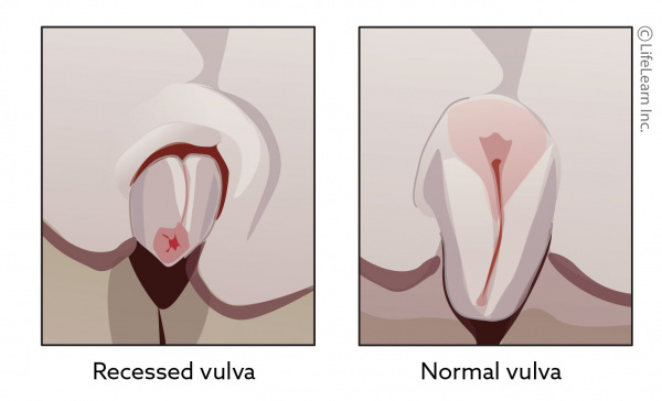 dog_recessed_vulva_2018-01