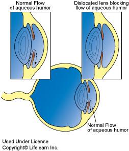 Glaucoma in dogs vca animal hospital causes include glaucoma22009 ccuart Choice Image