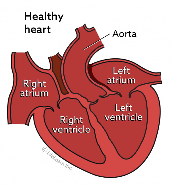 Heart Murmurs In Dogs Vca Animal Hospital