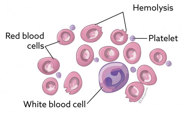 Autoimmune Hemolytic Anemia in Dogs | VCA Animal Hospital