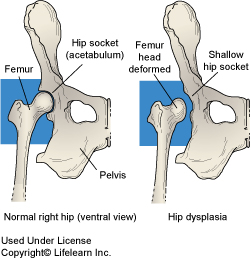 Hip Dysplasia in Dogs | VCA Animal Hospital