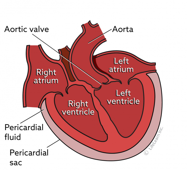 Pericardial Effusion in Cats | VCA Animal Hospital