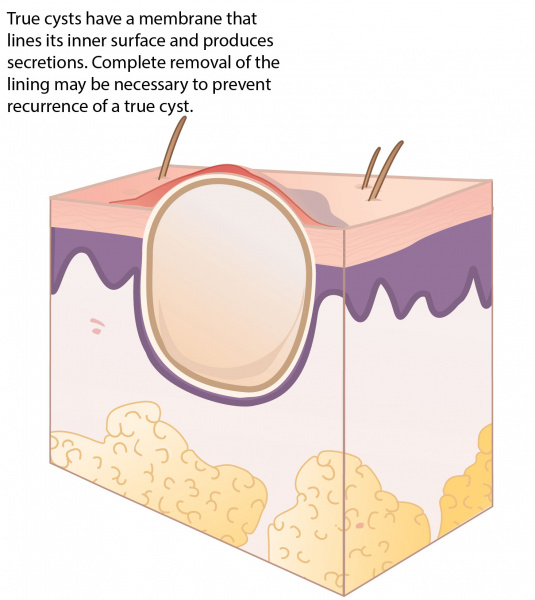 Diagram Of Sebaceous Cyst - Wiring Diagram K6