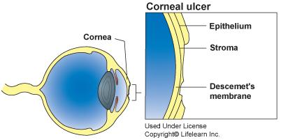 corneal ulcers in cats vca animal hospital Indolent Corneal Ulcer Diagram
